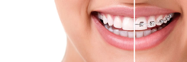 Dental Braces Near Me