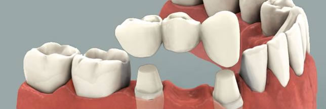 Dental Bridges Near Me