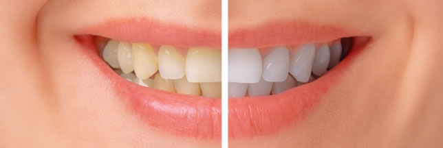 Teeth Whitening Near Me